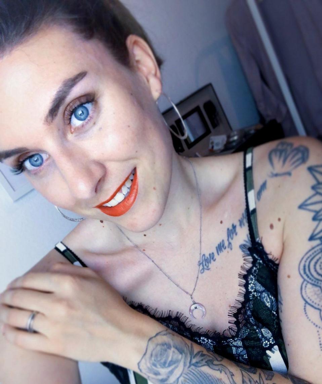 Interview: Marie zum Thema Schuppenflechte