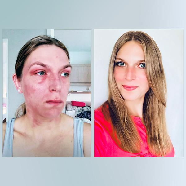 Bild zu Mut Mach Geschichte: Neurodermitis: Die Geschichte von Ina